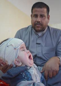 Baby Seif in Fallujah, born with spina bifida. Credit: Donna Mulhearn